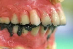 下の入れ歯がスムーズに動くように調整します