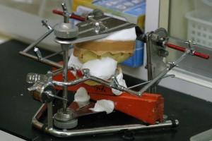 石膏の模型を咬合器に装着します