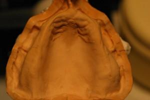 無歯顎の上下の型取りをして、石膏で模型を作ります。