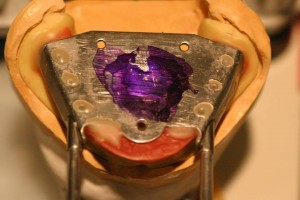 下顎の模型に板状の装置をつけます。