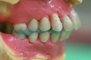 細かな磨き砂でセラミックの歯の表面を磨きます