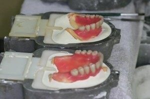 出来上がったワックスの入れ歯をフラスコに埋没します。