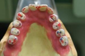 セラミックの歯を削って調整していきます